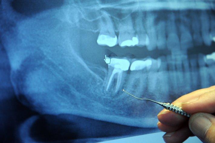 Dental Xray.jpg
